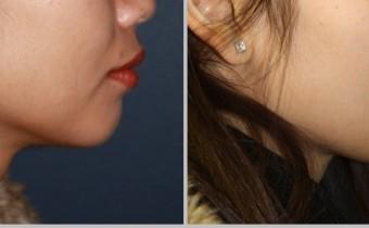 chin-augmentation1-700x365